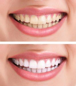 汚い歯と綺麗な歯