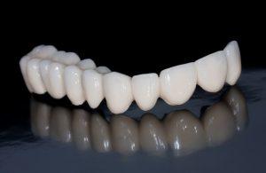 歯の治療用のセラミック