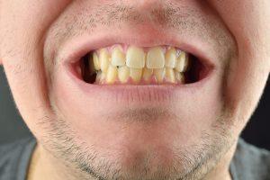 歯と髭が汚い男性