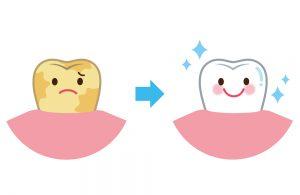 汚い歯ときれいな歯のイラスト