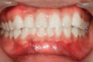器具によって歯茎がむき出しになっている画像