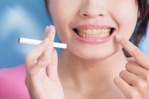 タバコを吸いながら歯を指さす女性