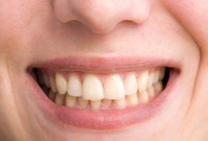 加齢によって汚れた歯