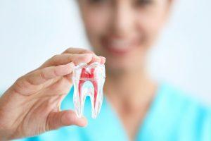 透明な歯の模型