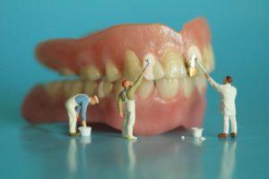 歯のホワイトニングを手伝う小人たち
