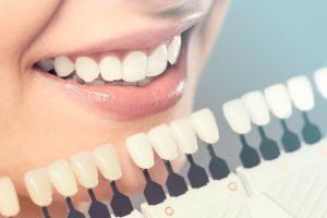 シェードガイドと自分の歯を白さを比べる女性