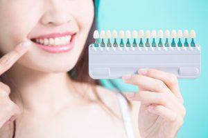 シェードガイドと自分の歯の色を比べる女性