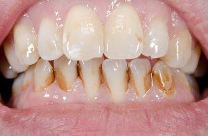 タバコの着色により汚れた歯
