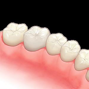 奥歯のイラスト