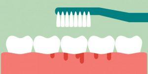 歯茎から血が出ているイラスト