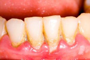 歯周病により汚れた歯