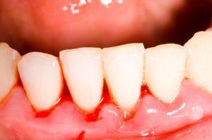 出血してしまっている歯茎