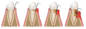 治療途中の歯の断面