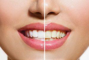 黄ばんで汚い歯と白い綺麗な歯