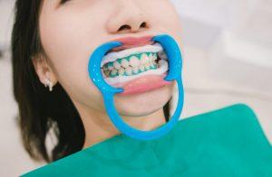 口を道具で開けて歯のホワイトニングを待っている女性