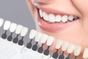 シェードガイドと自分の歯の色を確かめる女性