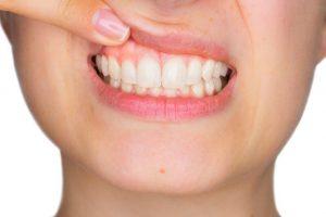 上唇を引き上げ歯と歯茎を露出させている女性
