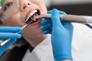 歯の施術を受ける女性