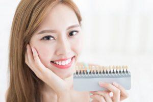 歯の色サンプルを持っている女性