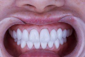 器具をつけて歯の写真を撮られている女性