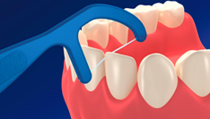 F字型のデンタルフロスが歯と歯の間に当てる