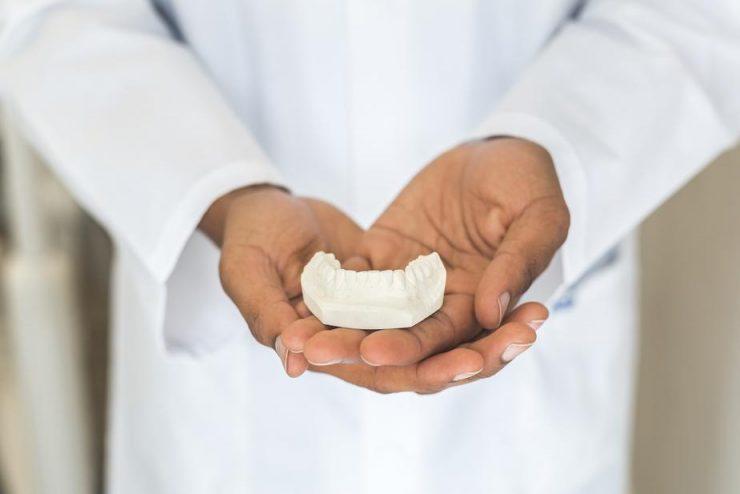 歯医者の手の上に歯のサンプルが置いてある