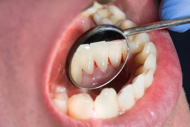 歯間が出血している