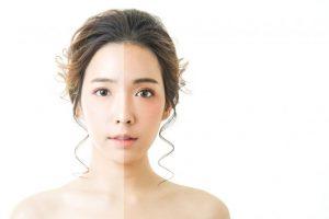 顔の肌色が違う女性