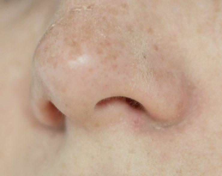 角栓が多い鼻