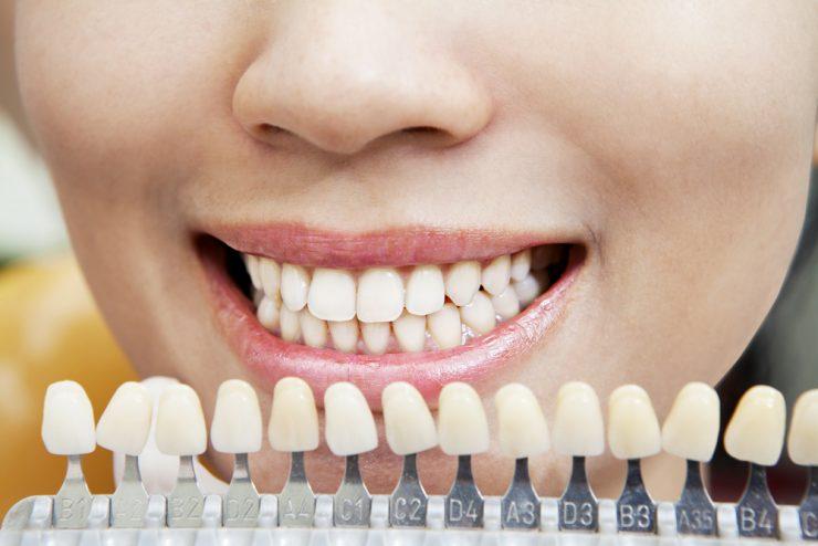 歯の色のサンプル
