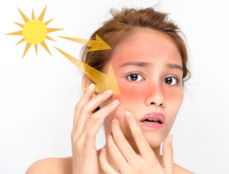 紫外線で顔が赤くなっている女性