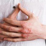 手の肌が乾燥して湿疹がある写真