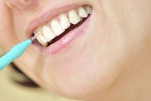 歯間ブラシを使っている女性