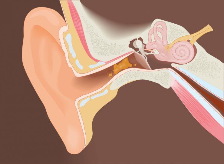 耳垢 を ごっそり 取る 方法