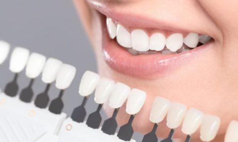 女性と歯の色サンプル