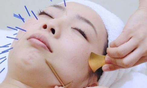 美容鍼をしている女性