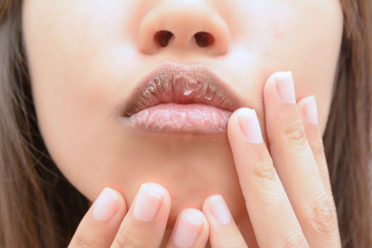乾燥した唇