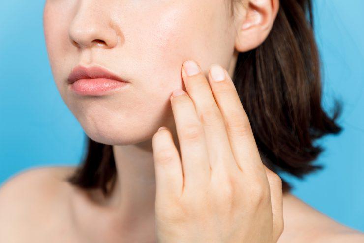 頬の皮膚があれている女性