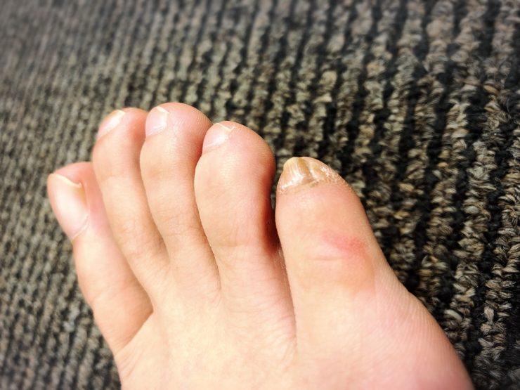 脚の小指が変形している
