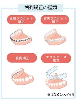 歯列矯正種類