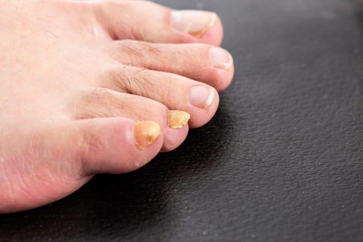 足の爪が黄色