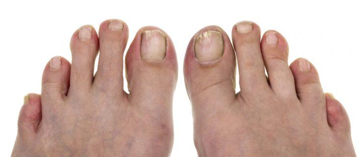 足の爪が汚い