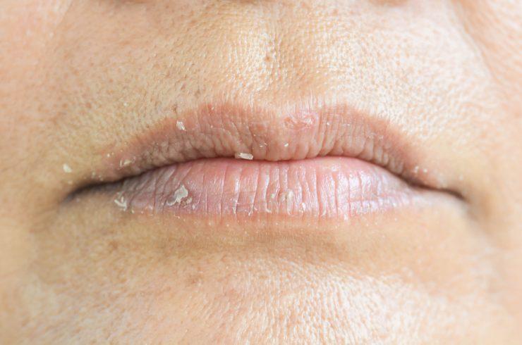 乾燥している唇